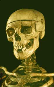burkes-skeleton.jpg