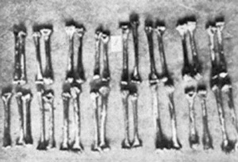 Κόκκαλα θυμάτων του Haarmann που αλιεύτηκαν από το ποτάμι