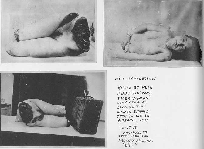 Το πτώμα της Hedvig Samuelson στο νεκροτομείο